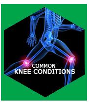 COMMON KNEE CONDITIONS