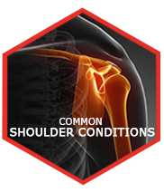 COMMON SHOULDER CONDITIONS