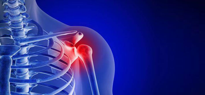 Shoulder-Arthritis-1