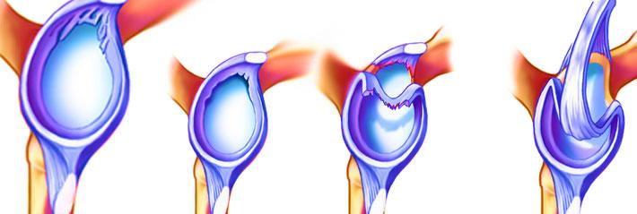 SLAP lesion repair